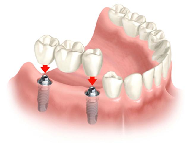 Mất 1 răng sao phải trồng tới 3 răng sứ?