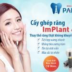 Cấy Ghép Răng Implant AN TOÀN – KHÔNG ĐAU khôi phục răng mất