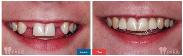 Bị mất 2 chiếc răng kề nhau thì chữa thế nào là tốt nhất? - ảnh 1