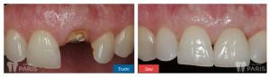 13 tuổi có nên nhổ răng cửa dưới để trồng răng giả không? 1