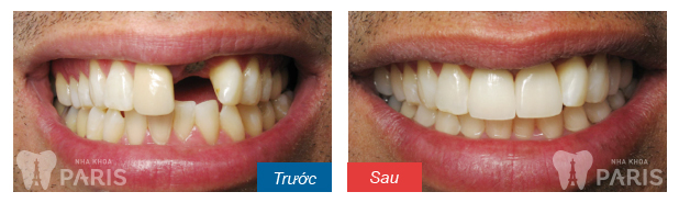 before-after-dental-implant-restoration