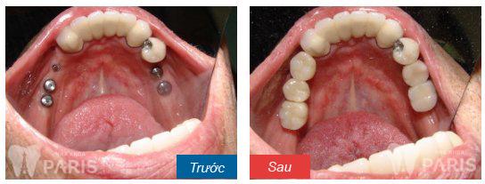 Răng số 7 sâu nặng tốt nhất nên nhổ bỏ và trồng răng mới