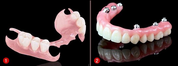 Phục hình răng đã mất bằng hàm giả tháo lắp