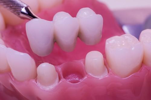 Kết quả hình ảnh cho sẽ được cấy sau khi nhổ răng từ 1 đến 3 tháng