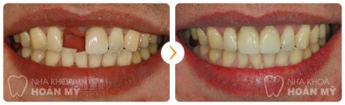 Có nên trồng răng sứ thay thế cho răng thật không?