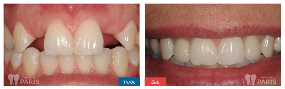 dentalimplantslateralincisors
