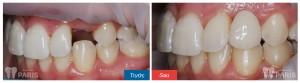 Làm răng sứ có ảnh hưởng gì tới sức khỏe hay không? - Ảnh 1