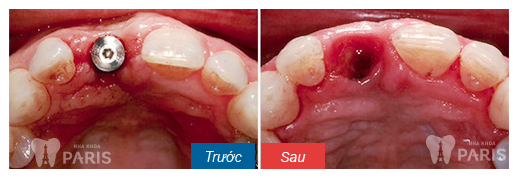 gum-graft-around-implant-before-after