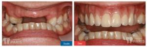 implant-retained-removable-bridge