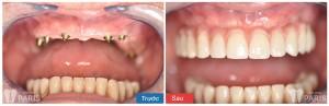 Răng bị mất cần được phục hồi càng sớm càng tốt - ảnh