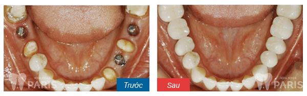 Trồng 3 răng bị mất nên thực hiện theo cách nào tốt nhất? - Ảnh 1