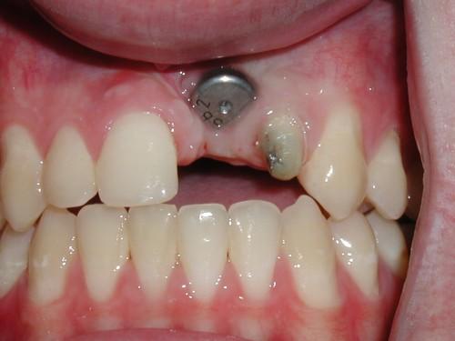 Trồng răng cửa giá bao nhiêu tiền khi dùng bằng Implant?