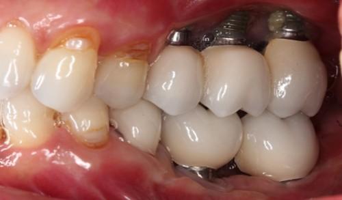 Những điều cần lưu ý khi cấy ghép Implant 2