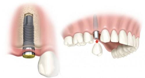 Những lưu ý khi cấy ghép Implant cần thiết nhất