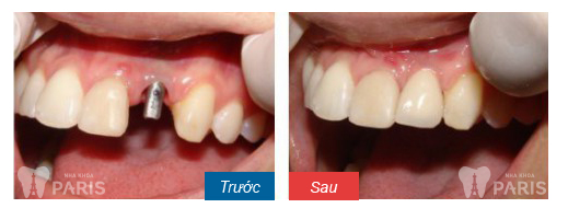 Chi phí làm răng giả giá bao nhiêu là hợp lý nhất? 2