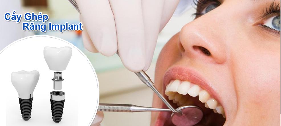 Trồng răng giả có đau không và cách nào tốt nhất?