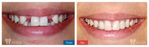 Trồng răng bao nhiêu tiền khi bị mất 4 răng? Bảng Giá Chuẩn - ảnh 1