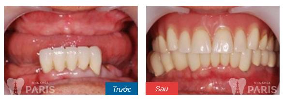 Phơi bày bí mật của các loại hàm răng giả tháo lắp 9