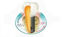 Trồng răng thẩm mỹ 1