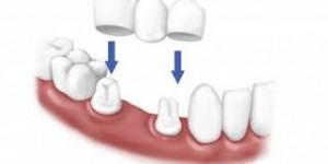 Làm cầu răng có tốt không bằng công nghệ Răng sứ CT 5 chiều?