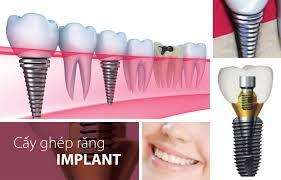 4 Tiêu chí quan trọng lựa chọn trụ răng Implant phù hợp và tốt nhất 2