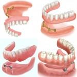 Trồng răng toàn hàm trên Implant như thế nào tiết kiệm nhất?