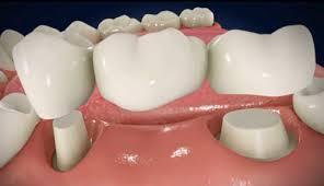 Làm cầu 2 răng mất tại sao lại phải dùng tới 6 răng sứ? 1