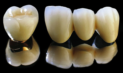 Giá răng giả cố định bao nhiêu tiền? 1