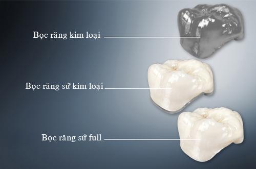 Cầu răng sứ Titan có những nhược điểm gì 2