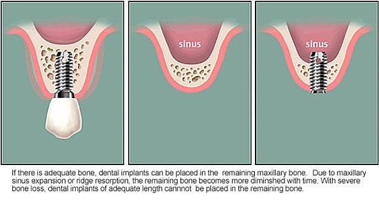 Cấy ghép răng Implant khi tiêu xương hàm có các dạng nào?