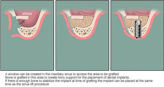 Cấy ghép răng Implant khi tiêu xương hàm  2