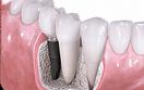 Trồng răng thẩm mỹ 10