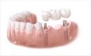Trồng răng thẩm mỹ 12