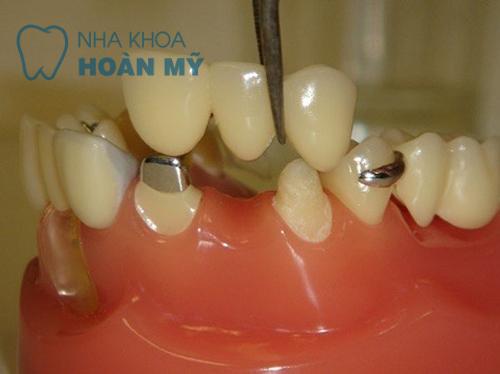 4 yêu cầu cần có để làm cầu răng bền chắc như răng thật