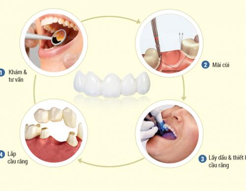 4 yêu cầu cần có để làm cầu răng bền chắc như răng thật 3