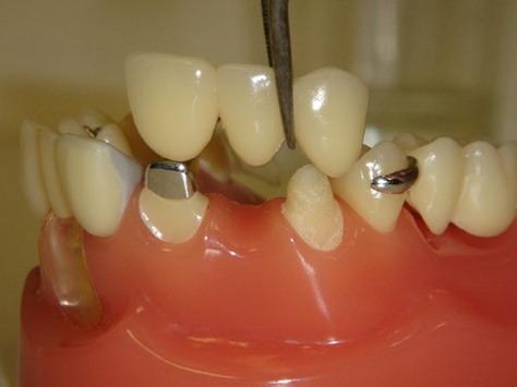 Kỹ thuật trồng răng sứ bằng cầu răng trongphục hình 1 răng mất