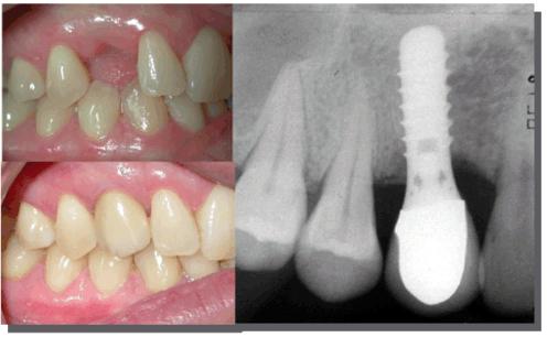 Tại sao răng implant bị đào thải? Cách xử lý như thế nào cho đúng 2