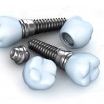 Bảng giá làm răng Implant đầy đủ nhất [Mới nhất năm 2016]
