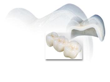 Làm răng sứ Cercon bằng tốt nhất bằng công nghệ nào?  4