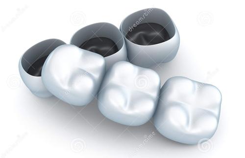 Những tiêu chí lựa chọn làm răng sứ ở đâu tốt nhất hiện nay