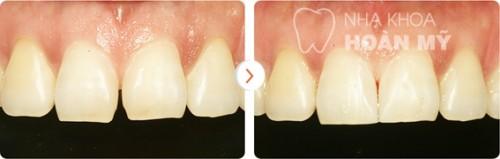 Làm răng sứ thẩm mỹ giá bao nhiêu là rẻ nhất?