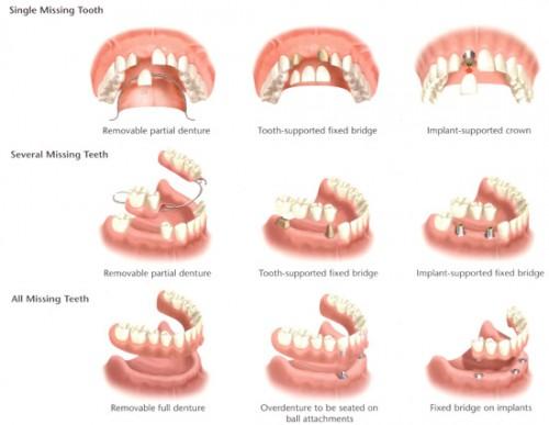 Hướng dẫn cách lựa chọn kỹ thuật trồng răng tốt nhất2