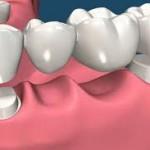 Trồng răng mất bằng cầu răng tiết kiệm chi phí nhất hiện nay