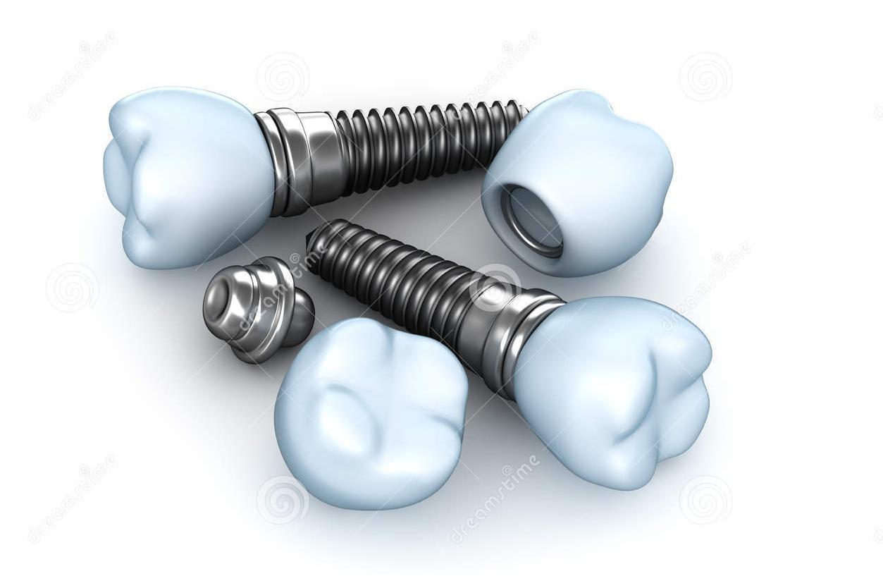 Trồng răng implant – Răng giả tốt hơn răng thật