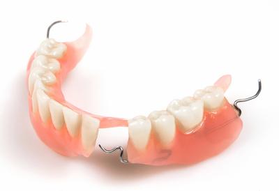 Hướng dẫn cách lựa chọn các loại trồng răng cơ bản 1