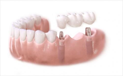 Hướng dẫn cách lựa chọn các loại trồng răng cơ bản 2