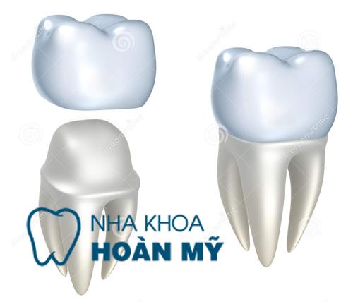 Trồng răng giả loại nào để không lộ chân răng