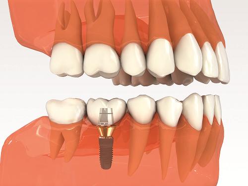 Tiết kiệm thời gian Trồng Răng Implant tối đa với Implant 4S - Ảnh 1