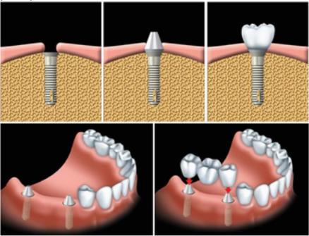 Phân biệt giữa trồng răng sứ bằng Cấy Implant và Cầu Răng - Ảnh 2