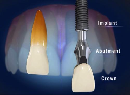 Trồng răng sứ giống như răng thật